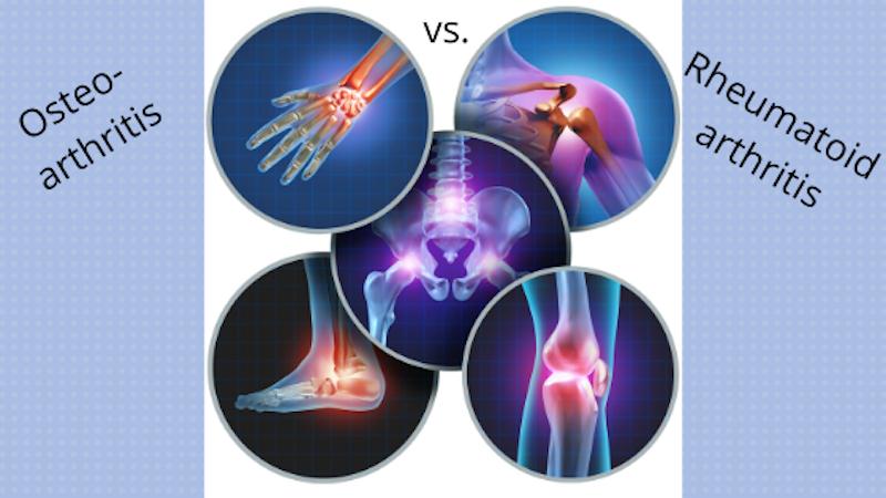 Osteoarthritis vs Rhuematoid Arthritis