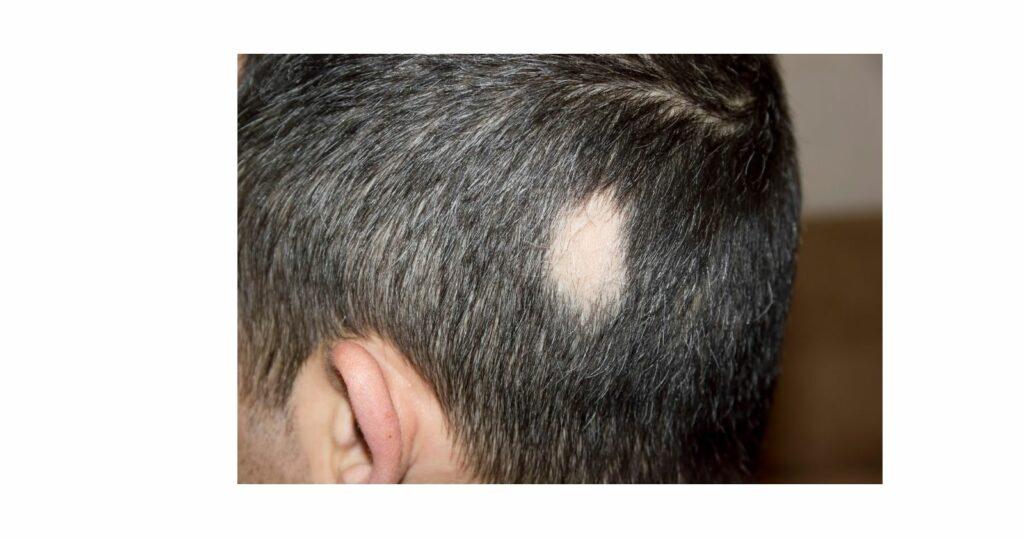 Medical Reasons for Hair Loss (Men and Women) - Alopecia