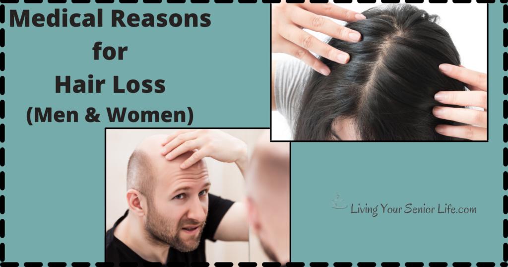 Medical Reasons for Hair Loss